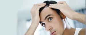 El 50% de los hombres subre de alopecia o calvicie.