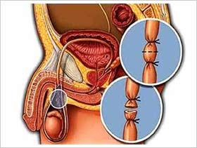 La vasectomía actualmente es reversible con altos niveles de eficacia.