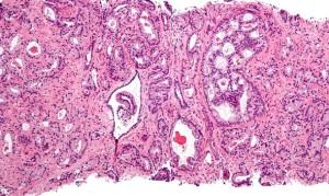 El examen de sangre que valora una proteína producida por la próstata, es muy útil para el diagnóstico de cáncer.