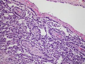 El cáncer testicular puede aparecer en varones entre los 15 y 40 años.