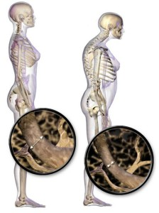 Se estima que 1 de cada 3 mujeres y 1 de cada 5 hombres sufre de osteoporosis