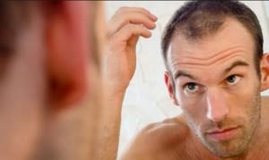 La caía del cabello tiene distintas formas de manifestarse.