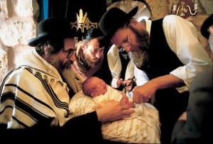 La circuncisión es una opción considerada higiénica para los hombres.