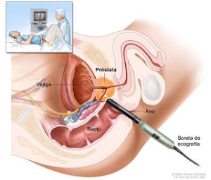 Un hombre que padece de prostatitis crónica debe tener en cuenta ciertas recomendaciones.